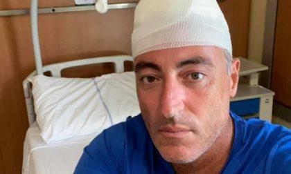 Infortunio mentre gioca a paddle, l'Assessore Gallera finisce in ospedale