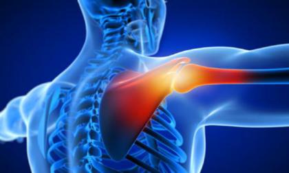 Dolore alla spalla? Trattamento fisioterapico conservativo e post-chirurgico
